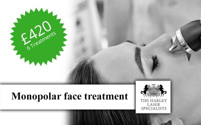 Monopolar face Treatment Offer