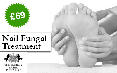 London Nail Fungal Treatment Offer