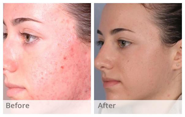 Chemical Skin Peel Treatment London Example