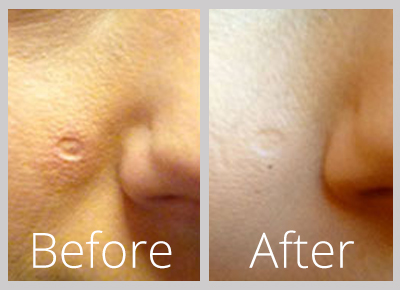 Dermapen Micro Needling London Before After