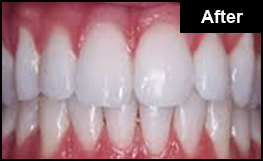 Laser Teeth Whitening London After