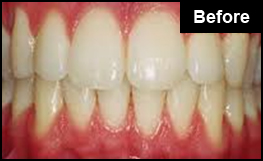 Laser Teeth Whitening London Before Example