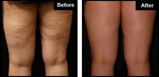 London Cellulite Treatment Example