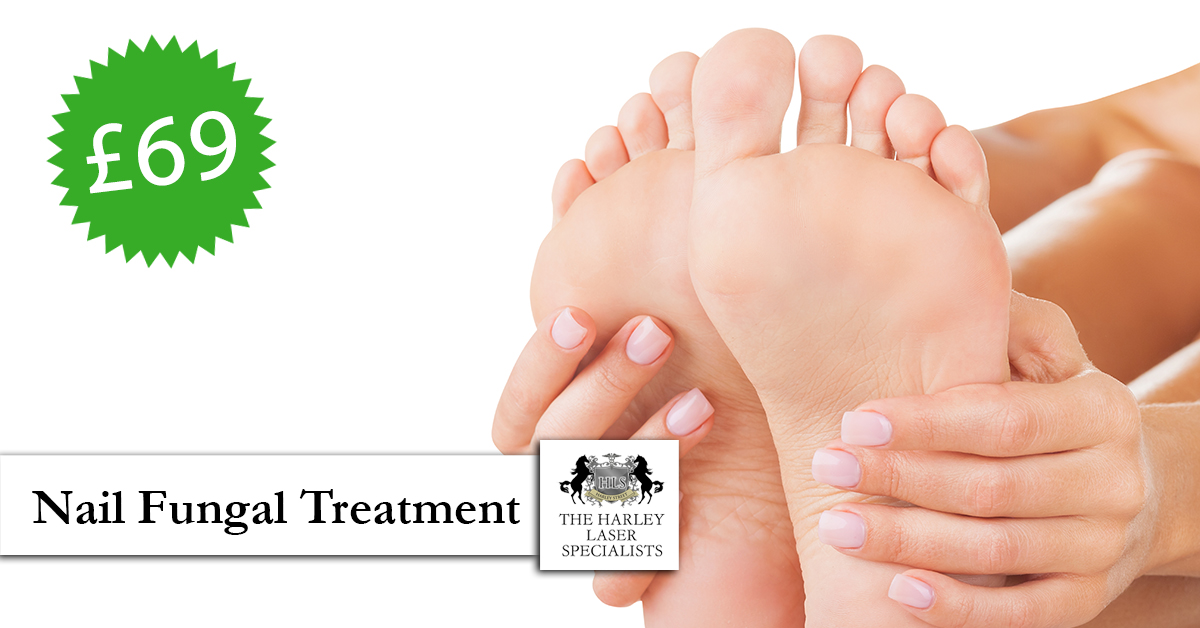 SPECIAL OFFER : £69 Nail Fungal Treatment London