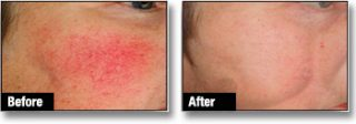 Rosacea Treatment London Before and After