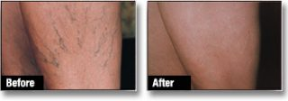 Spider Veins Treatment London Before and After
