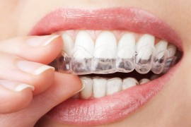 Teeth Whitening Custom Trays