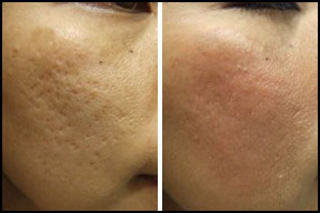 Before and After Acne Treatment London