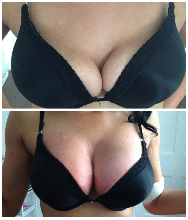 Before and After Example Breast Lift