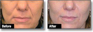 Dermal filler before & after 2
