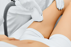 Laser Hair Removal London Tips